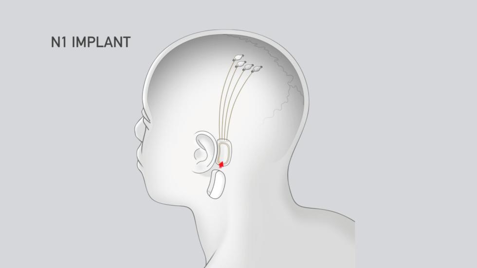 Схема имплантации, иллюстрация Neuralink